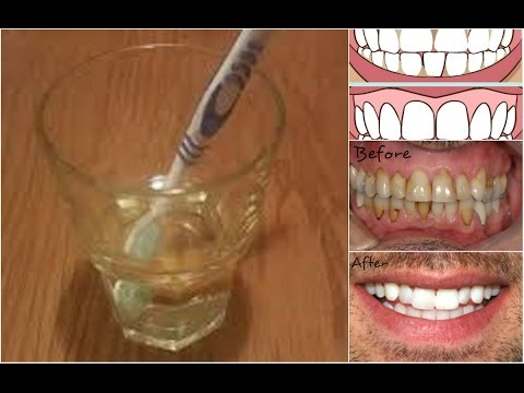 8 Natural Home Remedies To Tooth Enamel Loss Prevention