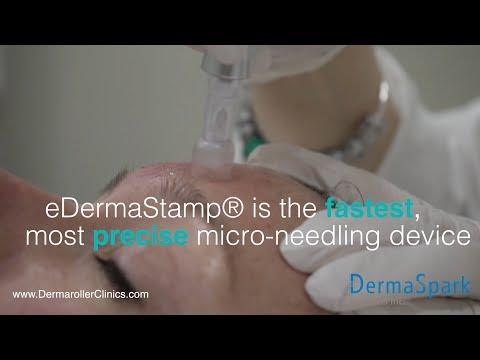 eDermaStamp® by Dermaroller® - The Gold Standard in Micro-needling