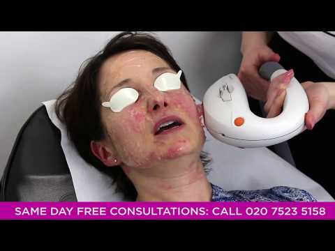Thread Vein Removal | Pulse Light Clinic London