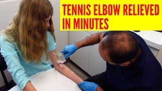 Tennis Elbow Pain Relieved In Minutes With ASTR (REAL TREATMENT!!!)