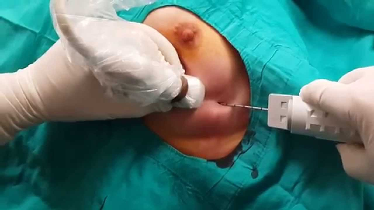 trucut biopsy breast