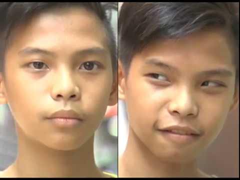 Operation Tuli, isinagawa ng GMA Kapuso Foundation