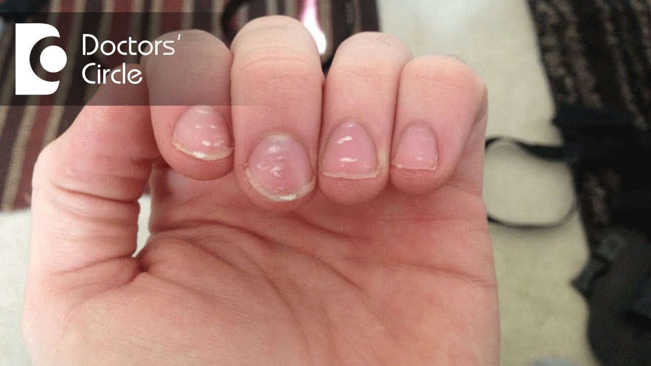 What causes white spots on nails and how to manage them? - Dr. Amee ...
