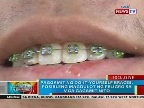 Bp paggamit ng do it yourself braces posibleng magdulot ng bp paggamit ng do it yourself braces posibleng magdulot ng peligro sa mga gagamit nito youtube solutioingenieria Images