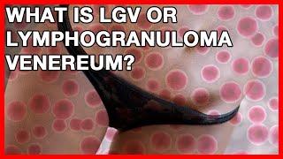 What is LGV or Lymphogranuloma Venereum? Signs and Symptoms of Chlamydia in men