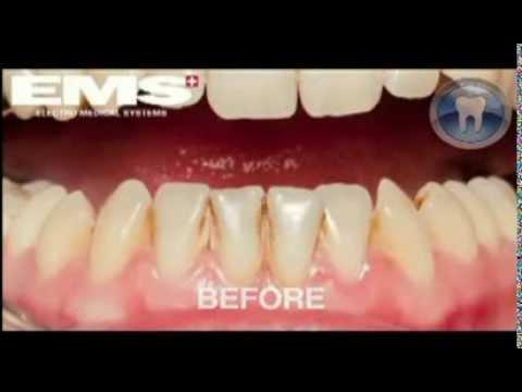 Vitamini za zdravlje zuba