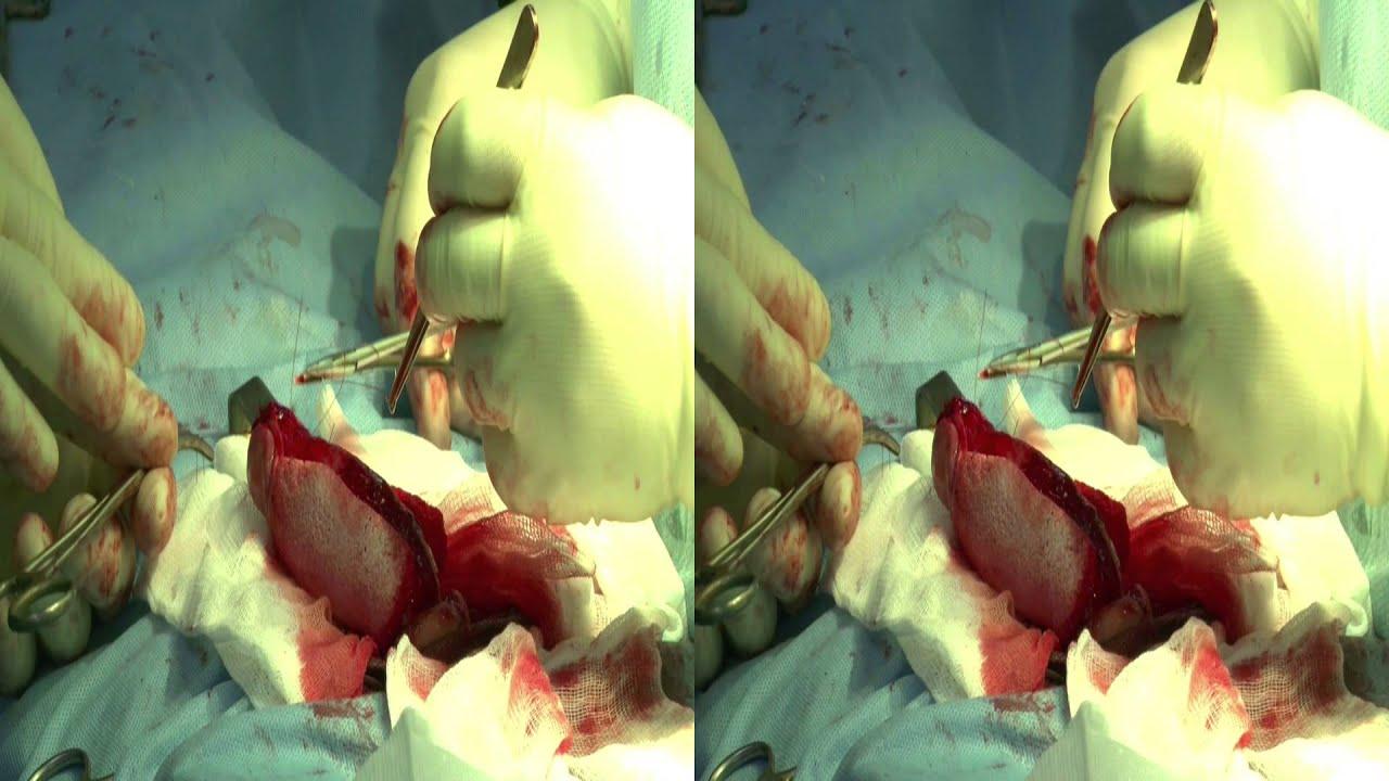 uvelichit-polovoy-chlen-hirurgicheskim-putem