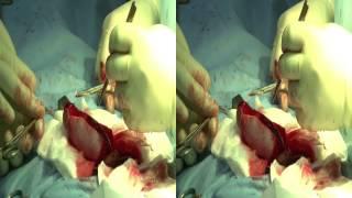 Операция по увеличению матрицей 3D