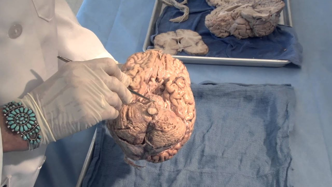 Orientation: The Planes of the Brain: Neuroanatomy Video Lab - Brain  Dissections
