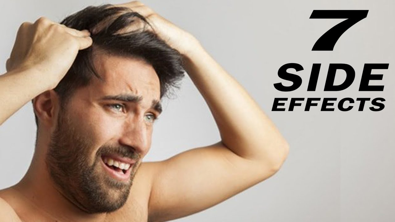 Top 7 Hair Transplant Side Effects Youtube