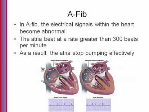Atrial Fibrillation Trial Halted Multaq Linked To Other