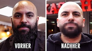 BART AB! VORHER/NACHHER!