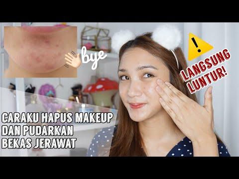 Cara Hapus Makeup Super Bersih + Pudarkan Bekas Jerawat