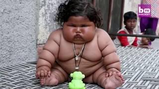 Bayi 8 Bulan Punya Berat 17 kg Seperti Balita 4 Tahun
