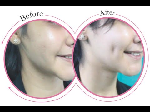 How To Get Dimples Naturally (100% Working)
