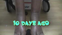 Leg Swelling and Leg Cuffs