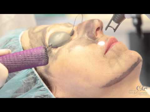 Spectra Peel at The Center for Skin and Cosmetic Dermatology