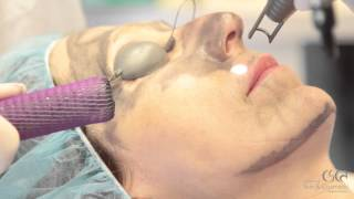 Spectra Peel at The Center for Skin and Cosmetic Dermatology Thumbnail