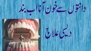 Health tip sin urdu Danton sy khoon aany ka desi nuskha, dant dard ky ilaj ghar main in urdu HIndi