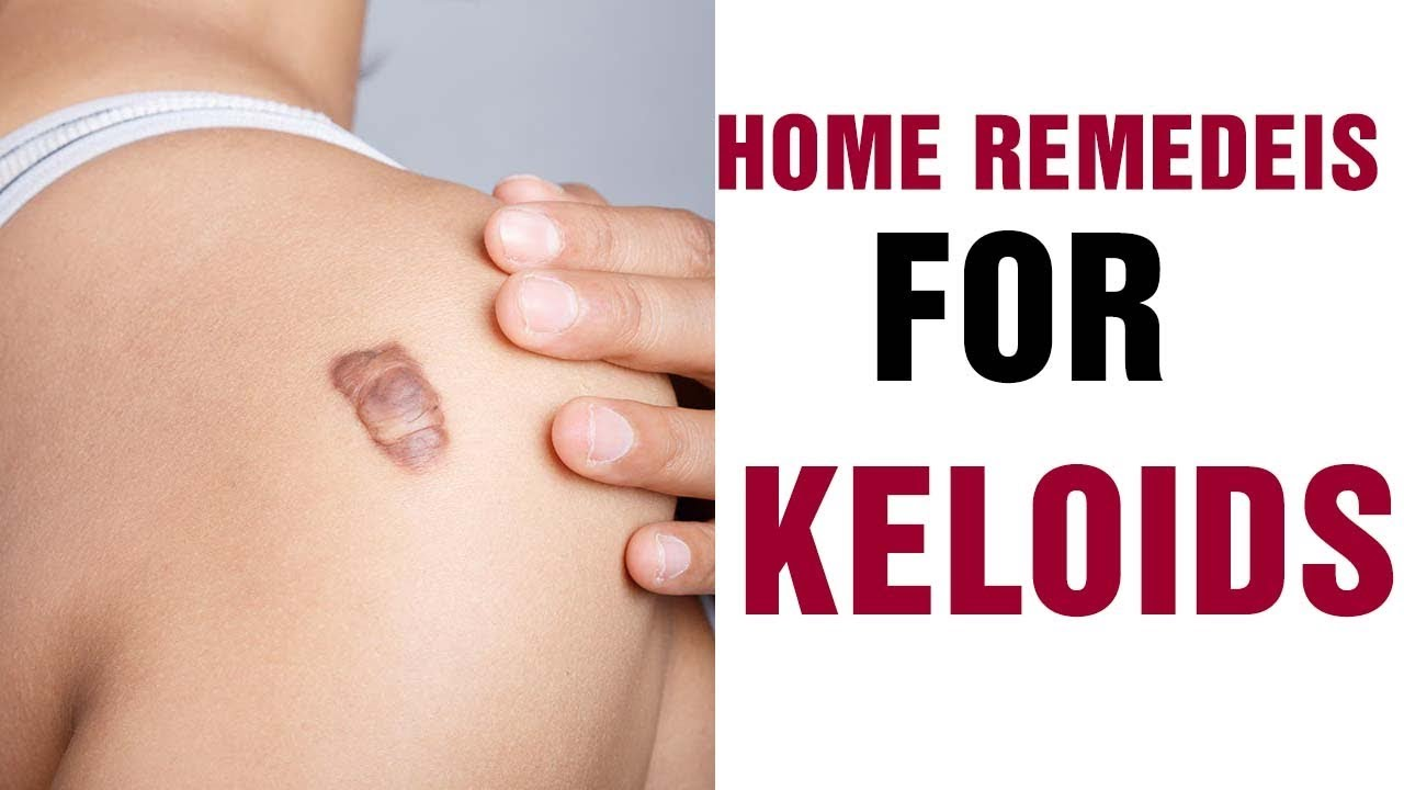 how to treat a keloid