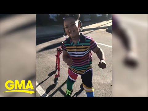 Single mom touches millions teaching daughter with cerebral palsy how to walk | GMA Digital