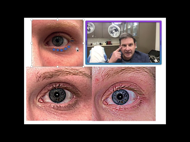 Dr. Burroughs Discusses Lower Eyelid Skin Pinch Blepharoplasty Canthopexy