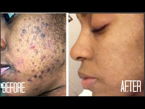 skin|-how-i-got-rid-of-dark-scars-(hyperpigmentation)-&-acne-+-giveaway!