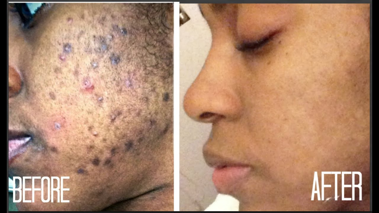 SKIN| How I Got Rid of Dark Scars (Hyperpigmentation) & Acne + GIVEAWAY!