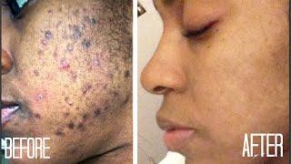 SKIN  How I Got Rid of Dark Scars (Hyperpigmentation) & Acne + GIVEAWAY!