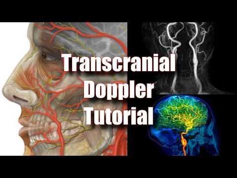 Transcranial Doppler: Tecnique, Anatomy & Protocol