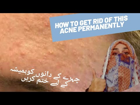 magical-remedy-for-acne/how-to-cure-forehead-pimples/permanent-solution-for-acne/maha-vakar