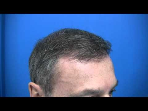 Hair Transplant in Canada by Certified Surgeon