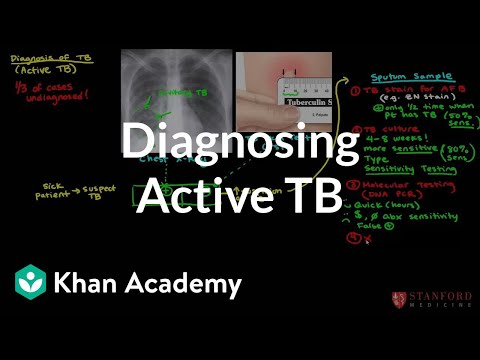 Diagnosing active TB | Infectious diseases | NCLEX-RN | Khan Academy