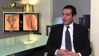 Πλαστική Χειλέων Αιδοίου (μείωση, αύξηση, lifting) | Cosmetic V surgeon
