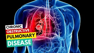 Chronic obstructive pulmonary disease & diving