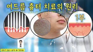 여드름 흉터 치료원리 1부/여드름흉터치료방법/여드름흉터…