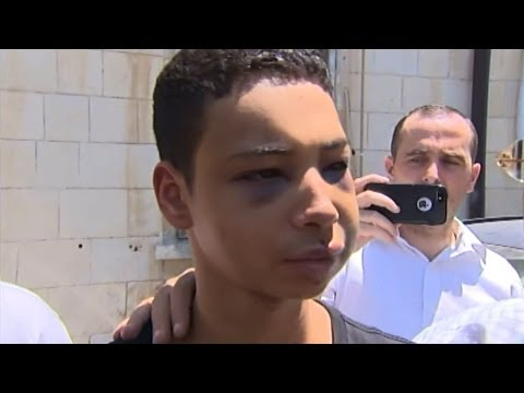 Beaten 15-year-old Palestinian-American Tariq Khdeir sentenced to house arrest in Israel