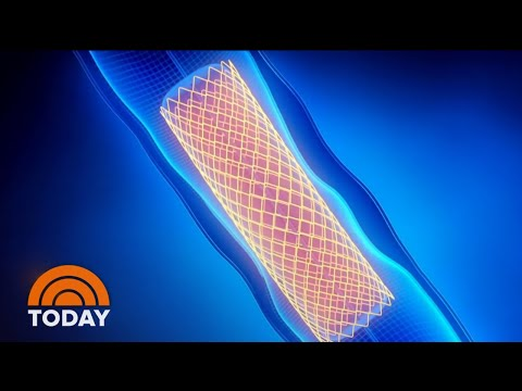 Stents, Bypass Surgery Called Into Question By New Study | TODAY