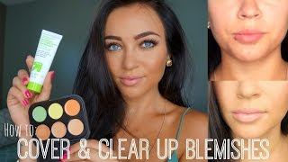 How to: Cover & Clear Up Blemishes Thumbnail