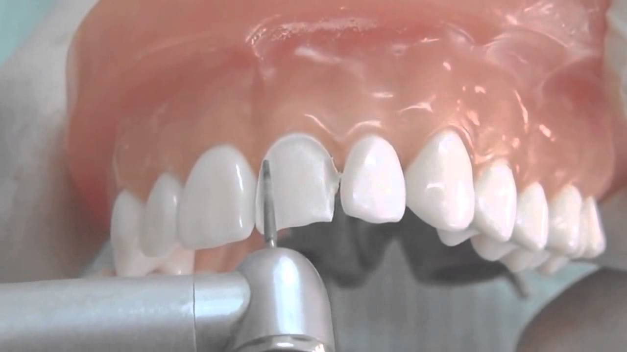 All Ceramic Crown Tooth Preparation [for Dental Students] - YouTube