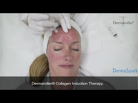 eDermastamp by Dermaroller - Micro-needling treatment - short version 1