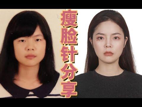 瘦脸针经验分享总结 | 拯救大脸