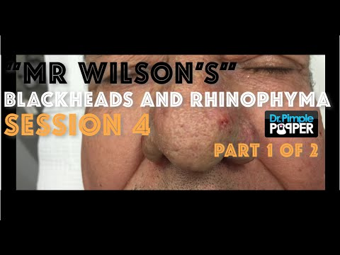 """Session 4, Part 1 of 2: """"Mr Wilson's"""" Blackhead extraction & 2nd electrosurgery sculpting treatment"""