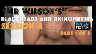 "Session 4, Part 1 of 2: ""Mr Wilson"