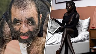 12 Rare Humans That Are One in a Million