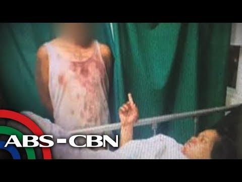 TV Patrol: Babae lumaban sa magnanakaw, ligtas sa 46 saksak