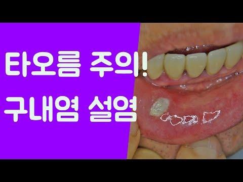 구내염 원인 설염 치료방법 구내염사진 설염사진 대전강남한의원