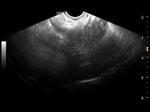 Серозная киста яичника: причины, симптомы и лечение