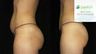 liposuction (Yağ Aldırma) Zararları 2017 - 2018