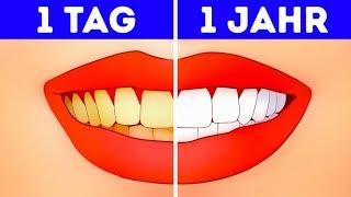 Ein Jahr ohne Zähneputzen? Was passieren würde!